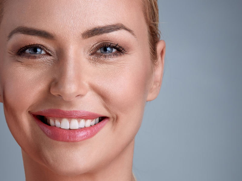 schematics of botox and fillers treated areas by dentist in Waterlooville