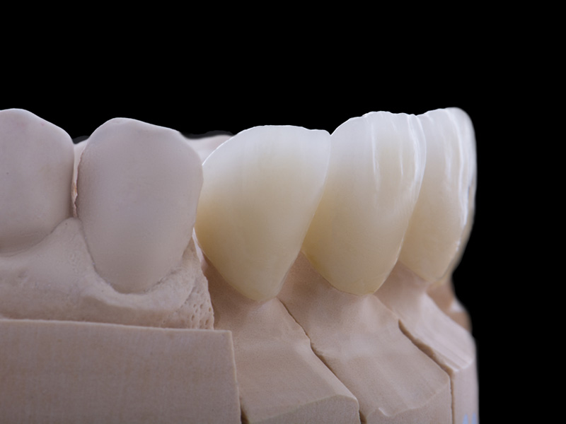 cosmetic dental crowns dentist cosmetic restoration
