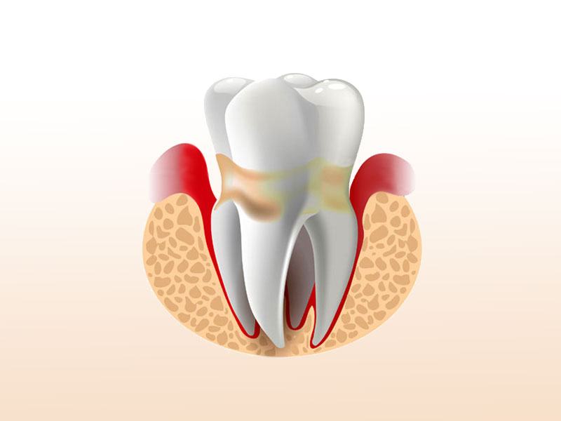 Belgrave House symbol tooth affected by gum disease dental practice