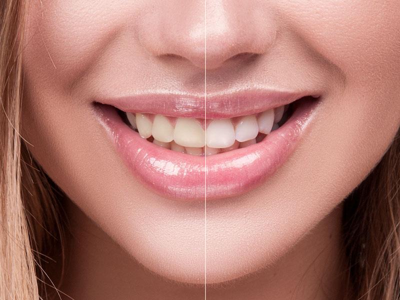 teeth whitening shiny lips girl smiling
