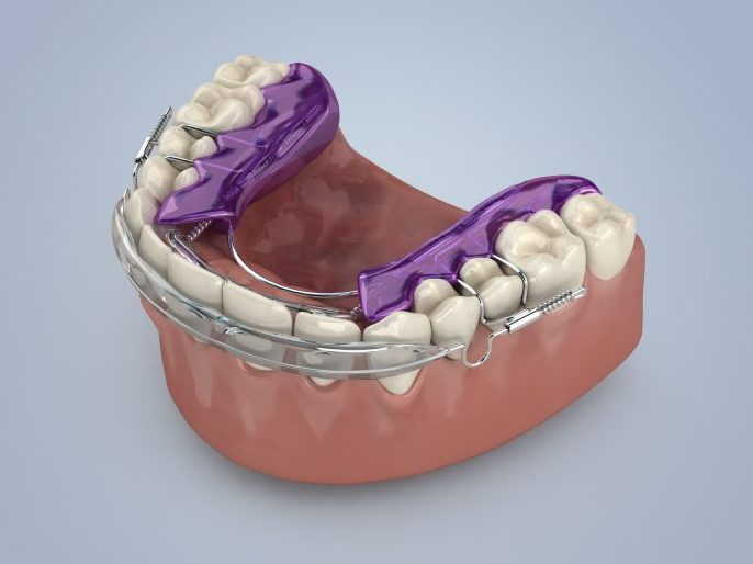 orthodontic appliance Inman straight teeth