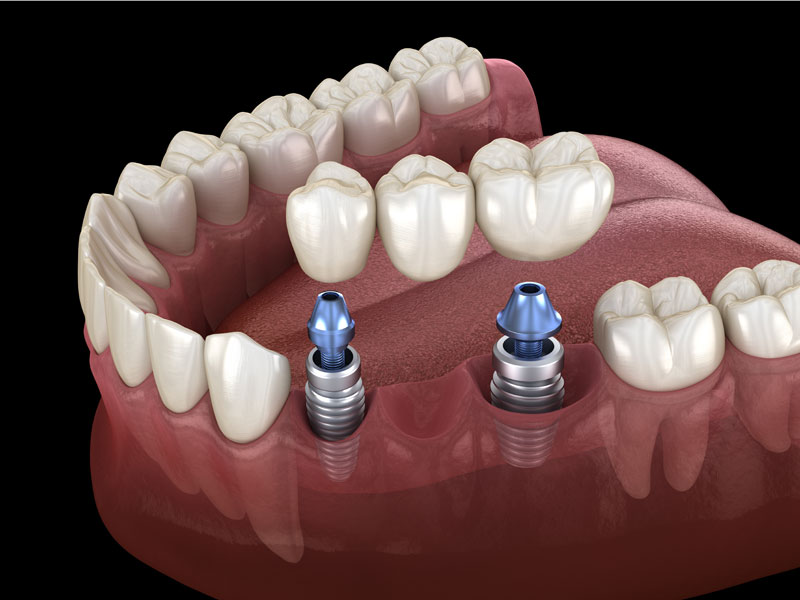 replacing teeth implants Belgrave House dental surgery Waterlooville
